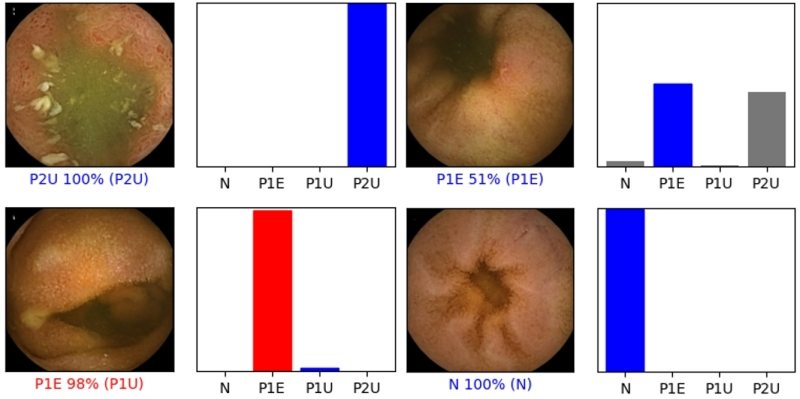 Figure 1 – Convolutional neural network output. N – normal mucosa; P1E – erosions with intermediate bleeding risk; P1U – ulcers with intermediate bleeding risk; P2U – ulcers with high bleeding risk