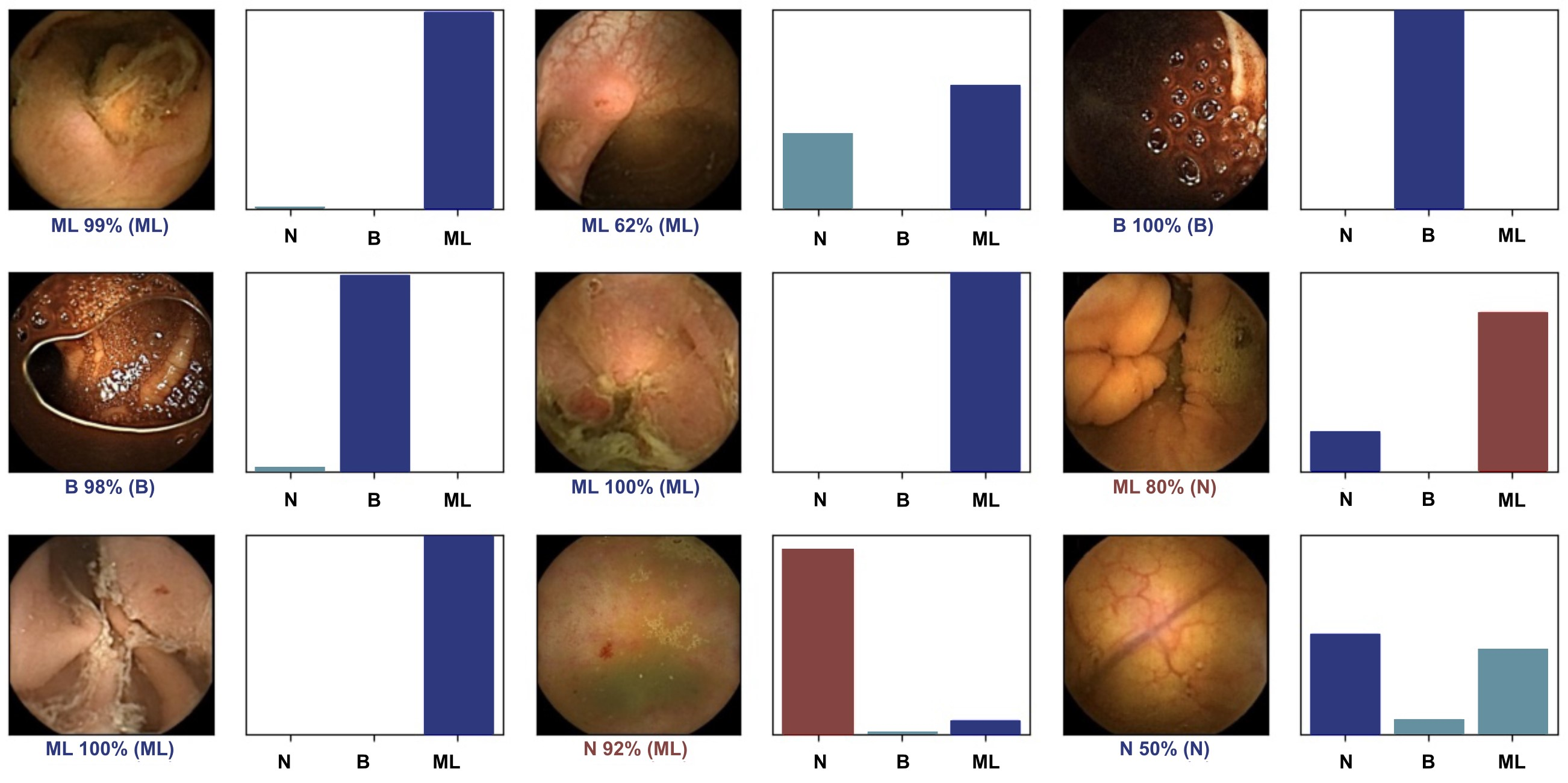 Figure 1 - Output obtained from the application of the convolutional neural network. N: normal mucosa; B - blood or hematic residues; ML – mucosal lesions.